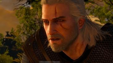 """Witcher 3: Wild Hunt """"Ретектуры лица Геральта. Шрамы стрыги и новый эффект от интоксикации"""""""