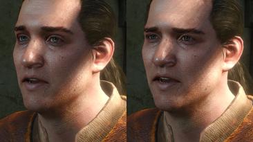 """Witcher 3: Wild Hunt """"Common Eyes\ Реплейсер глаз НПС"""""""