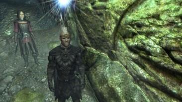 "Elder Scrolls 5 ""_STJ_Circlet_of_"""