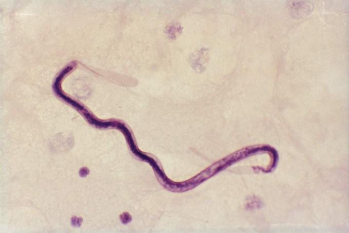 болезнь паразитов в организме человека