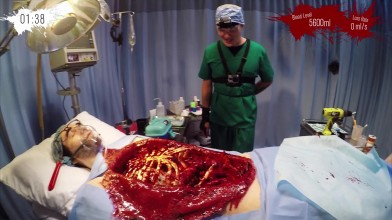 Surgeon Simulator в реальной жизни